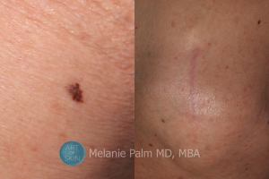 Art Of Skin Melanoma